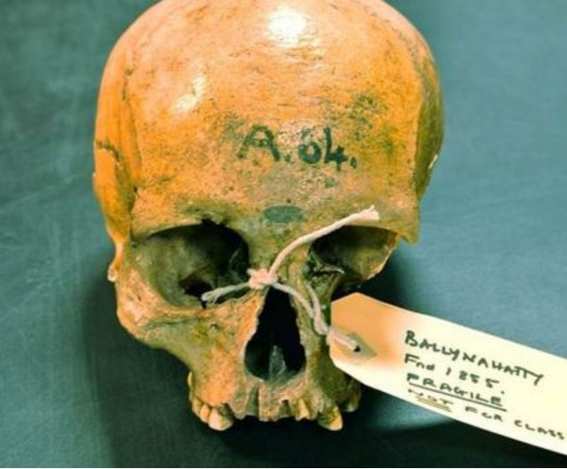 Genome of ancient Irish people Skull