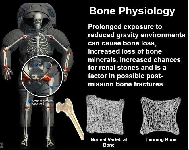 Thinning bones astronauts