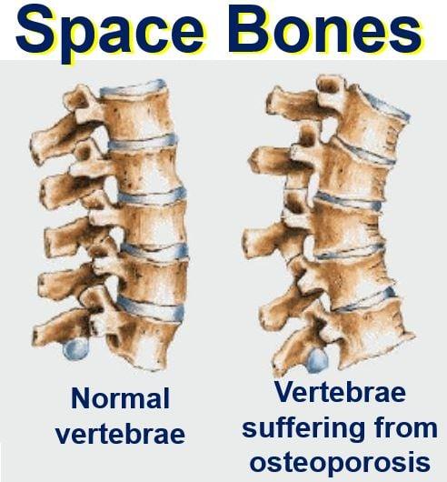 Space Bones