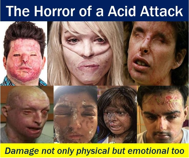 Horror of an acid attack