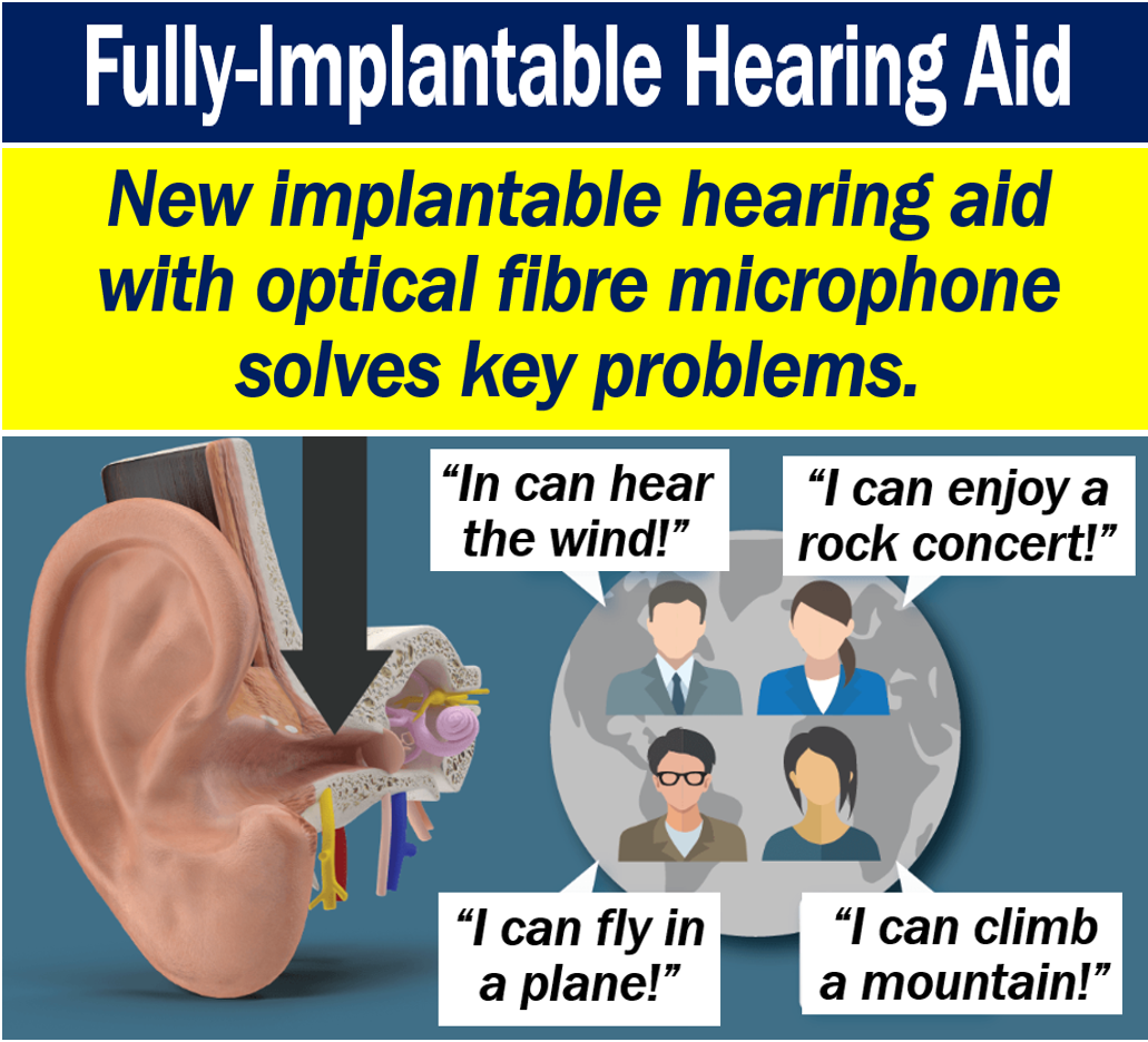 Fully-implantable hearing aid