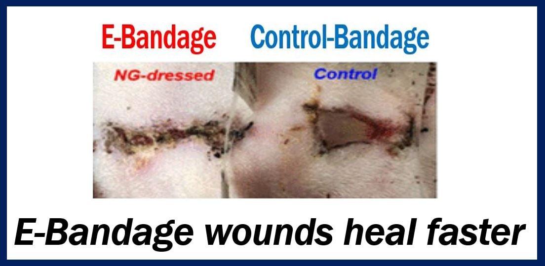 E-bandage thumbnail